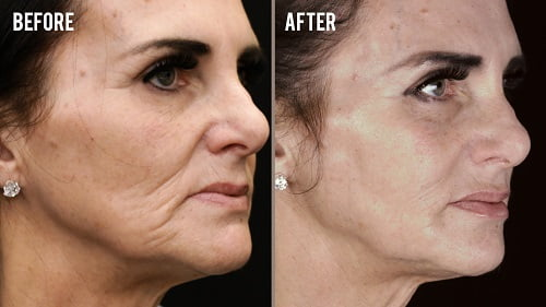 liquid face lift