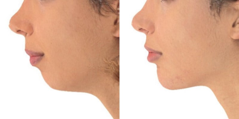 Before and After Juvederm VOLUX chin