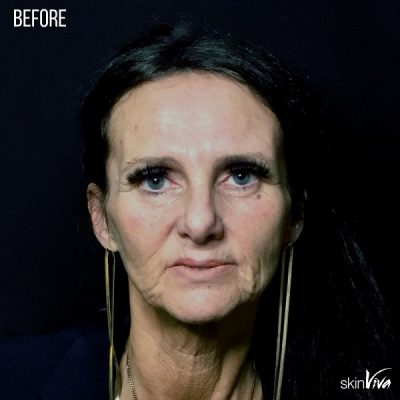 facelift result before and after