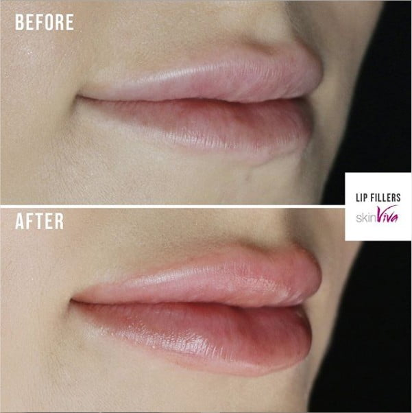 Lip Filler & Volumisation Injections | SkinViva Manchester