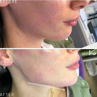 jaw enhancement results