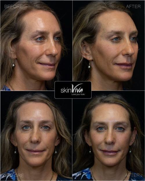 facial rejuvenation results