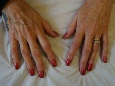 hand rejuvenation dermal fillers